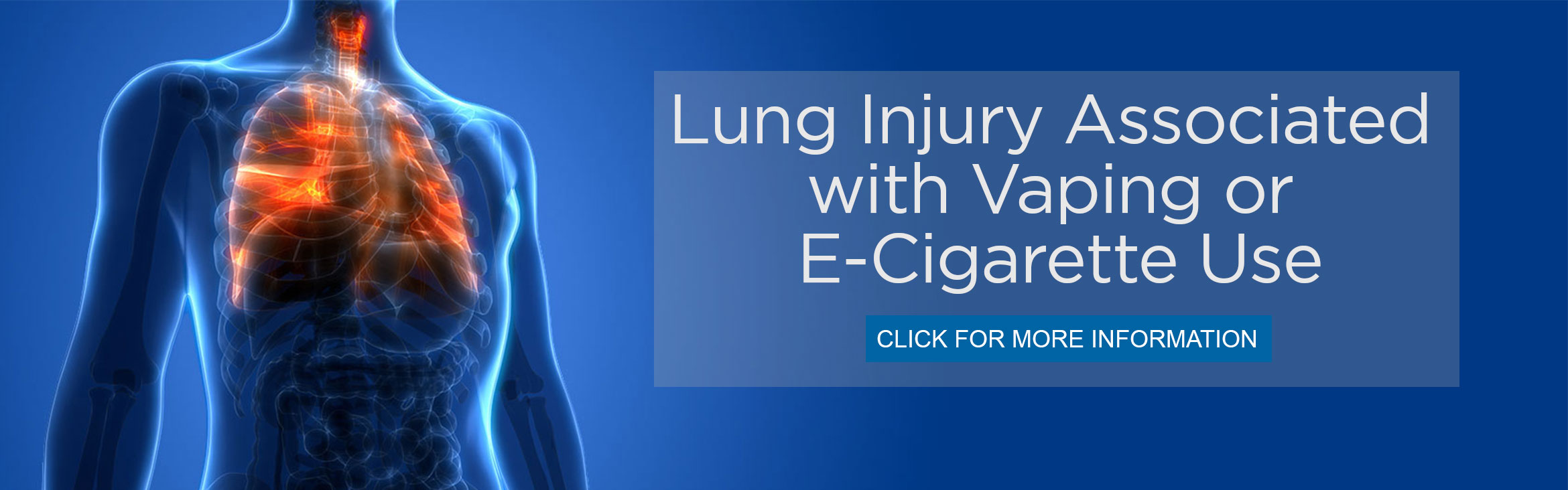 Lung Injury Associated with Vaping or E-Cigarette Use Click Here for more information